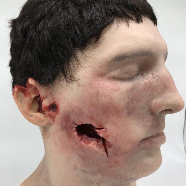 simask wound